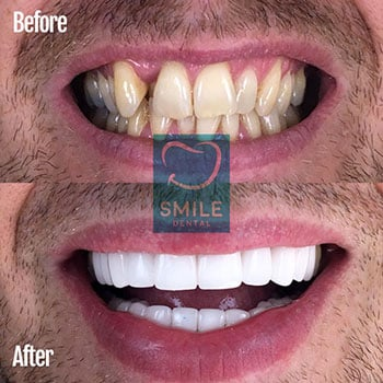 Smile Makeover Turkey