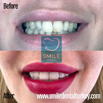 Full set smile makeover with zirconium veneers turkey.