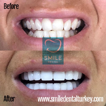 hollywood smile makeover turkey