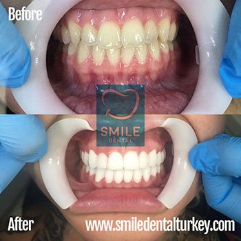 full set of veneers before after