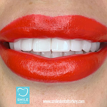 female hollywood style extra white veneers.