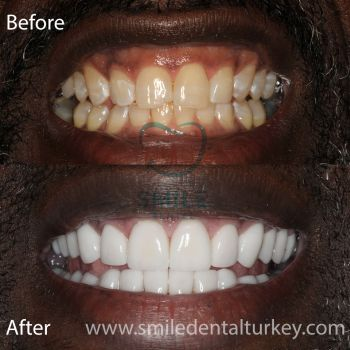 full veneers before after turkey