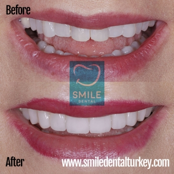 celebrity smile makeover turkey