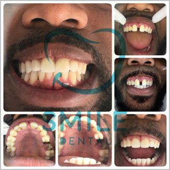 dental crowns teeth gap treatment