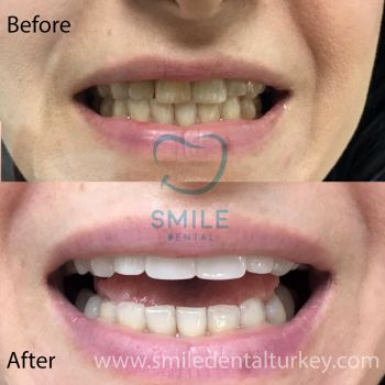 dental crowns veneers woman turkey smile makeover