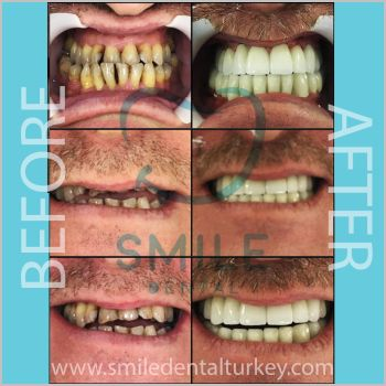 dental implant prices turkey