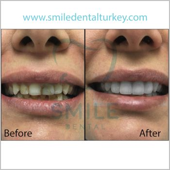 Dental implants turkey reviews