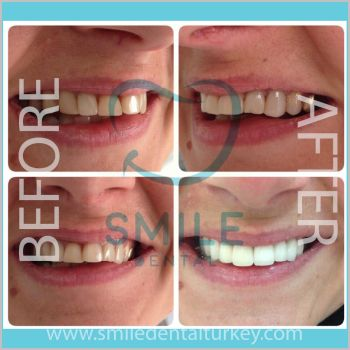 Dental veneers turkey before after