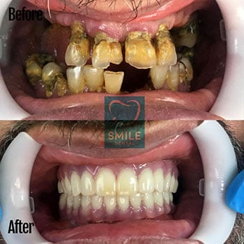 All on 6 Dental Implants Turkey