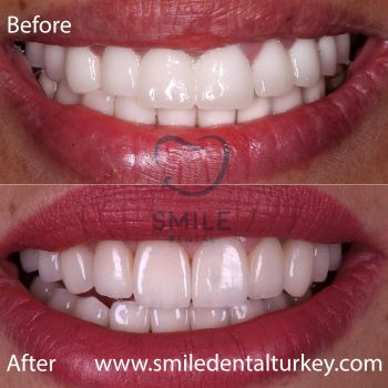 Emax veneers turkey prices