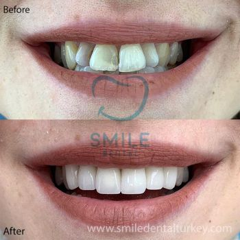 Emax veneers turkey