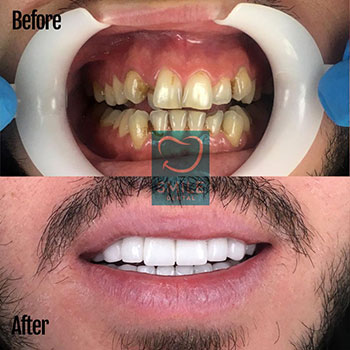 full set veneers
