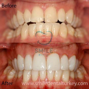 Full veneers turkey