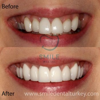 full dental veneers turkey