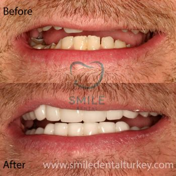 Full mouth veneers turkey