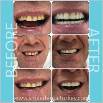 Full Zirconium Dental Veneers