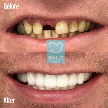 Gap fixed with zirconium porcelain crowns