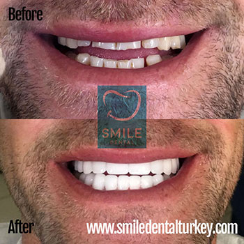 extra white hollywood veneers