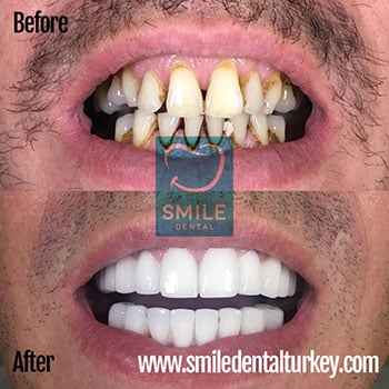 hollywood white smile makeover turkey