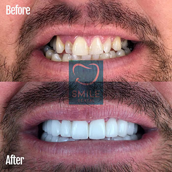 Full set of veneers turkey