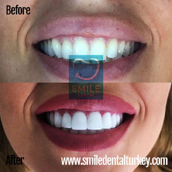 Hollywood smile veneers
