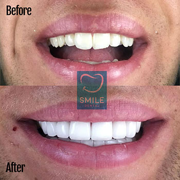 full set of veneers turkey luca from germany
