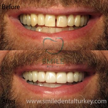 male full veneers turkey
