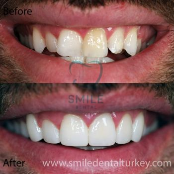 full zirconium veneers turkey