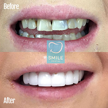 Full set of veneers in turkey