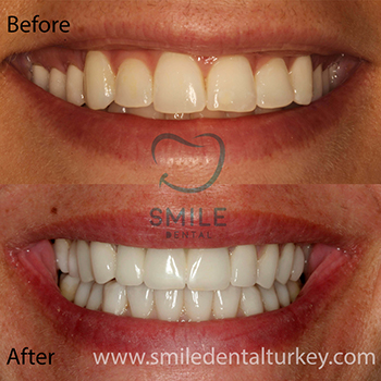 Smile dental turkey full veneers