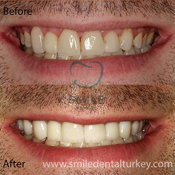 full dental veneers