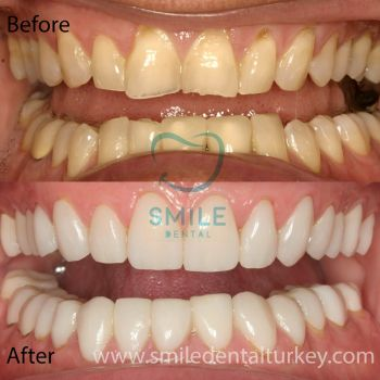 smile dental turkey