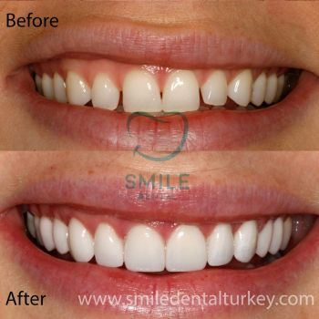 smile makeover full veneers
