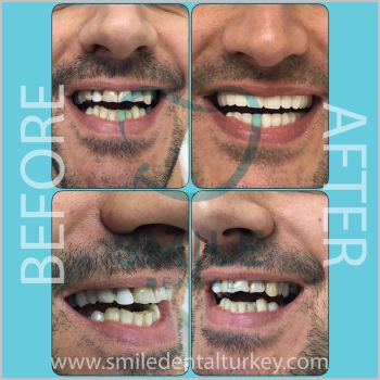 smilemakeover turkey before after