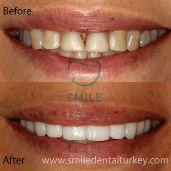 full zirconium veneers