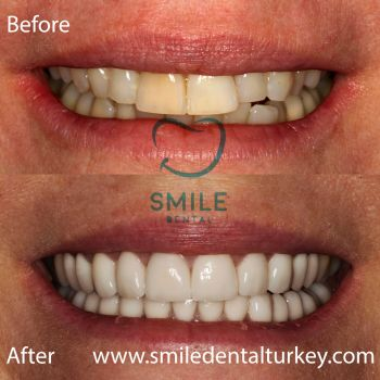 zirconium female veneers turkey