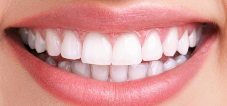 DENTAL VENEERS Turkey