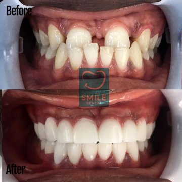 How much is a full set of veneers in Turkey?