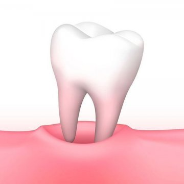 Swelling after tooth extraction: how to remove and how long it will take?