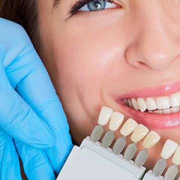 Can Overbite and Crossbite Patients Have Full Set Crowns?